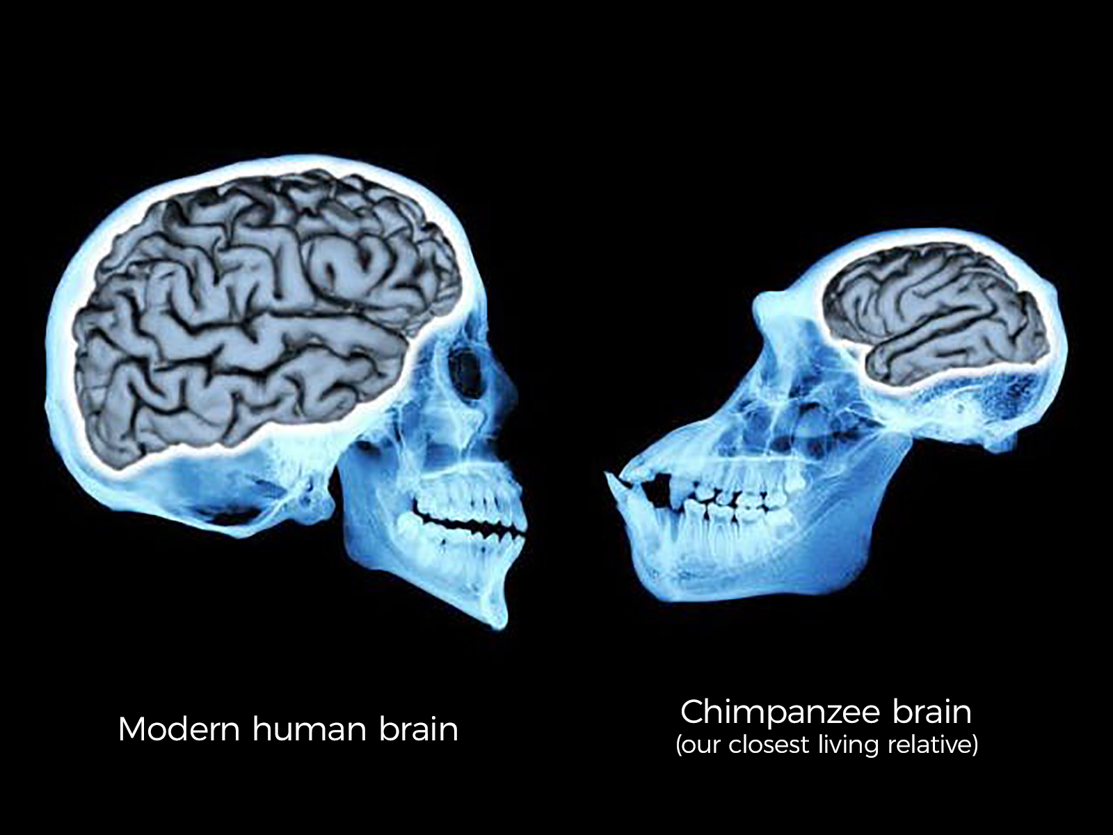 Human and Chimp Brains
